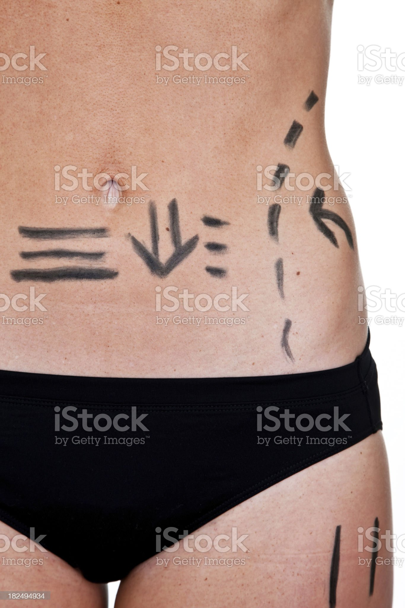 Woman with marked outline for cosmetic surgery royalty-free stock photo