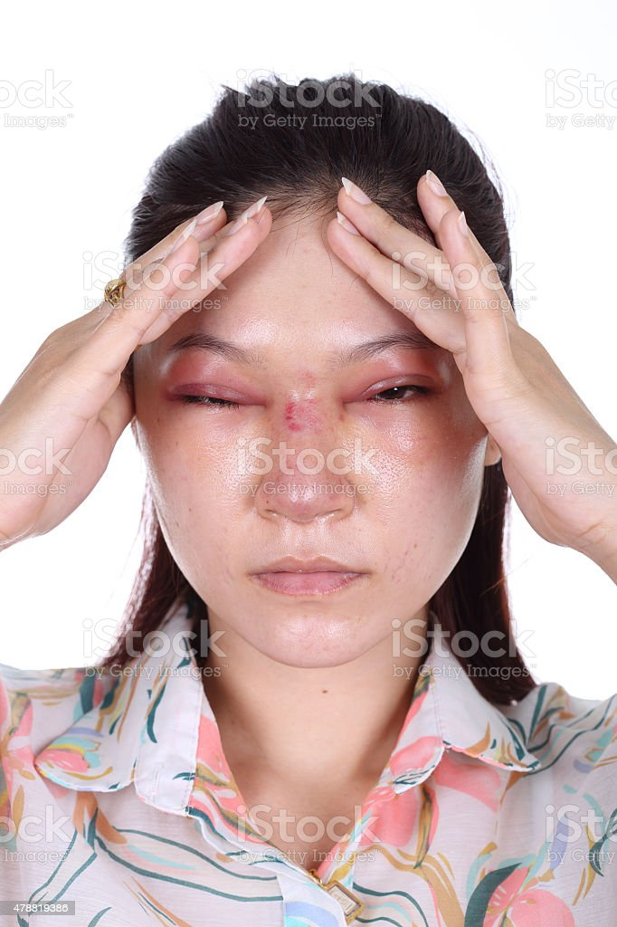 woman with nose and eye swelll after nose job stock photo