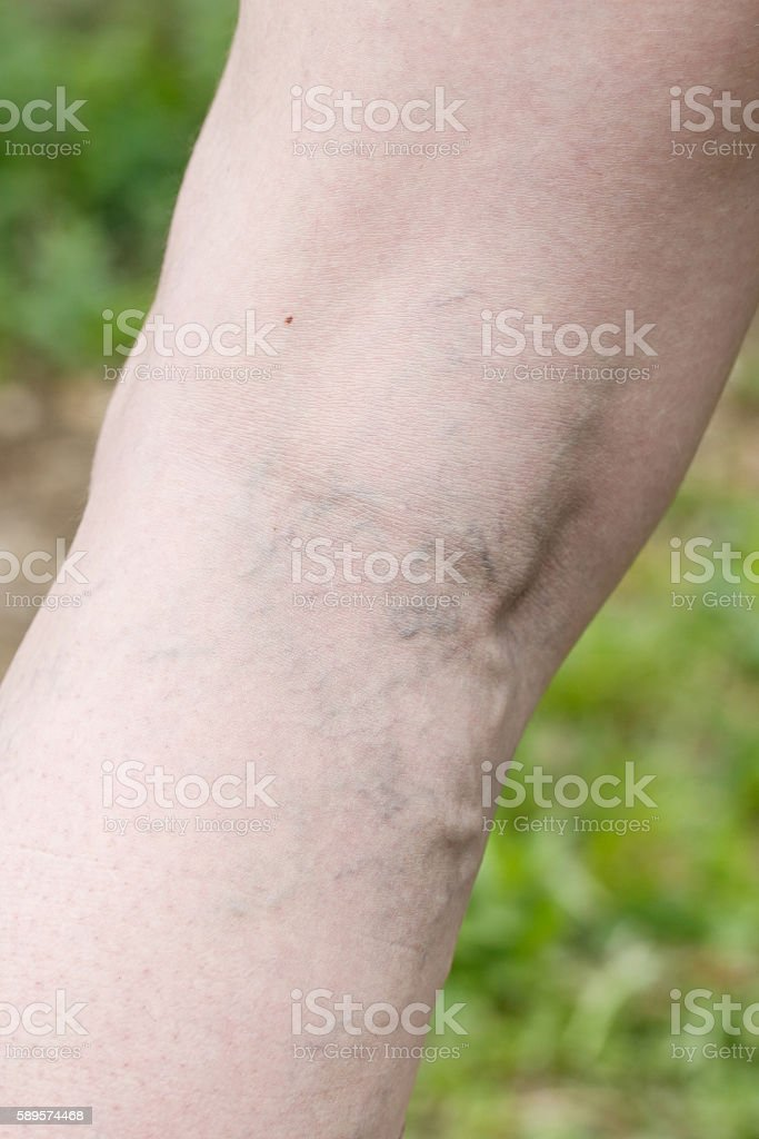 Woman with painful varicose and spider veins on her legs stock photo
