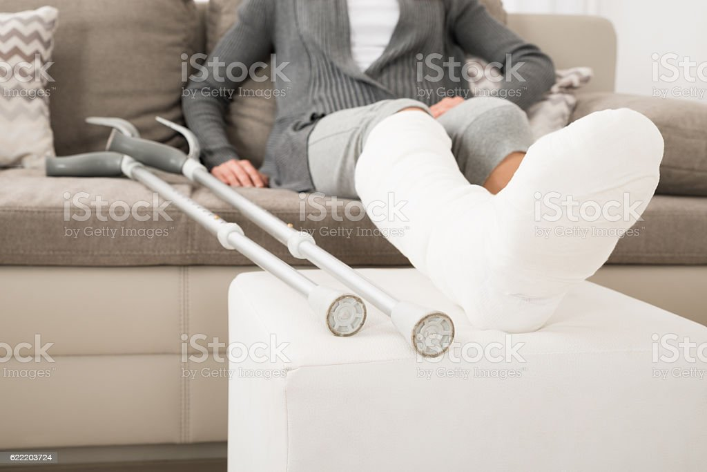 Woman With Plastered Leg Sitting On Couch stock photo