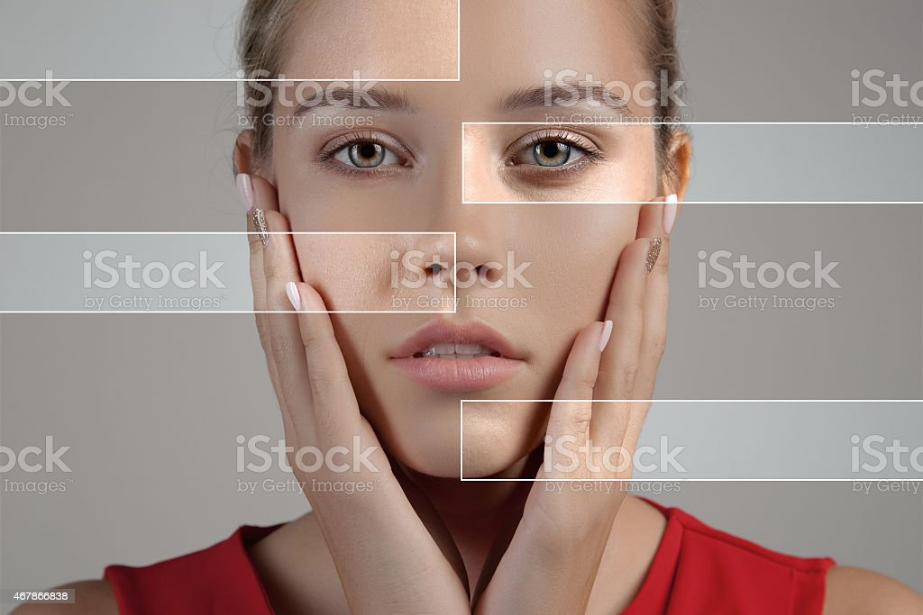 Woman with spotty skin with deep pores and healed skin stock photo