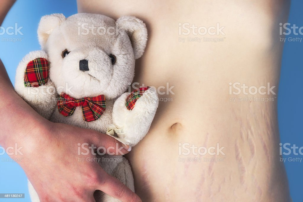 Woman With Stretch Marks stock photo