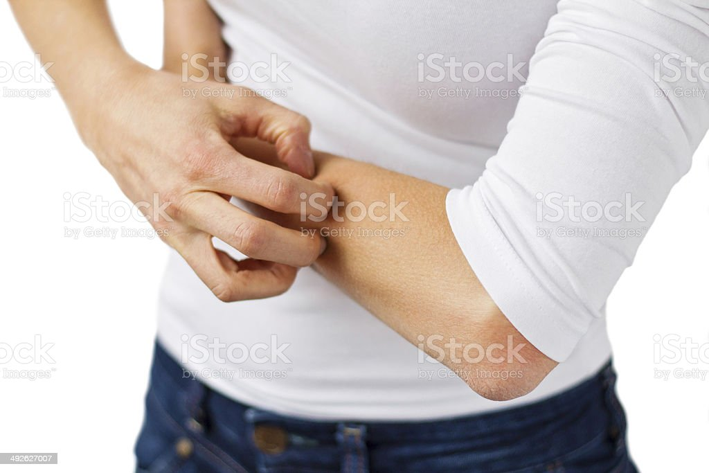 Woman with symptoms of eczema stock photo