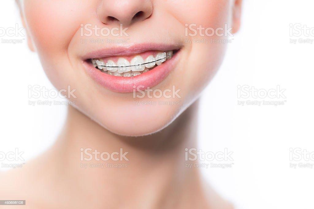 Woman with teeth braces stock photo