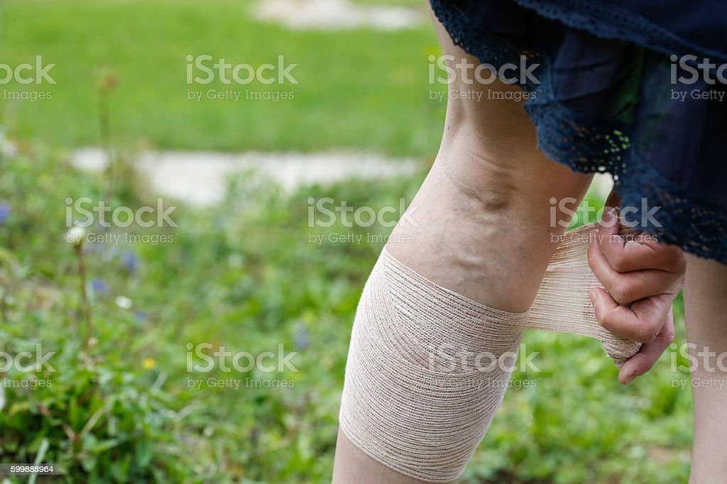 Woman with varicose veins applying compression bandage stock photo