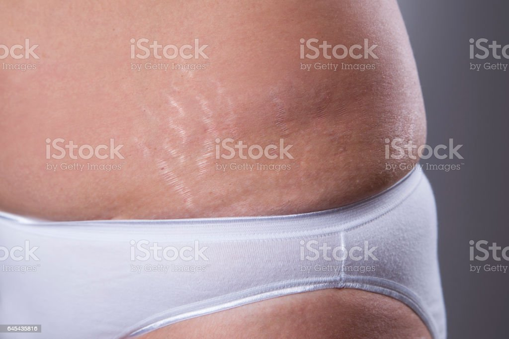 Woman's belly with stretch marks closeup stock photo