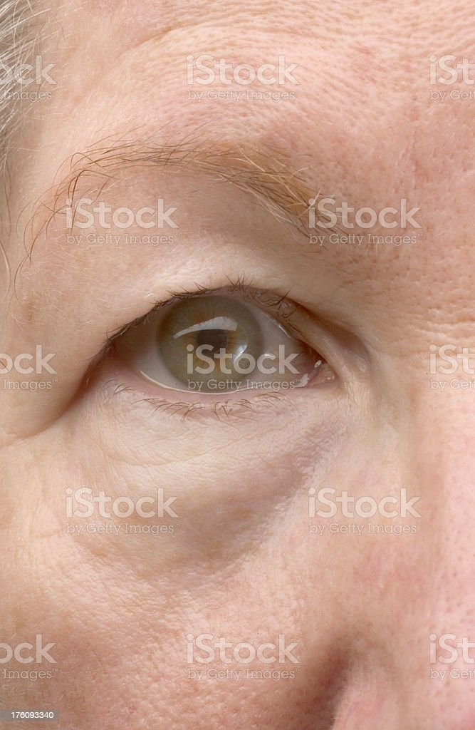 Woman's droopy eyelid stock photo
