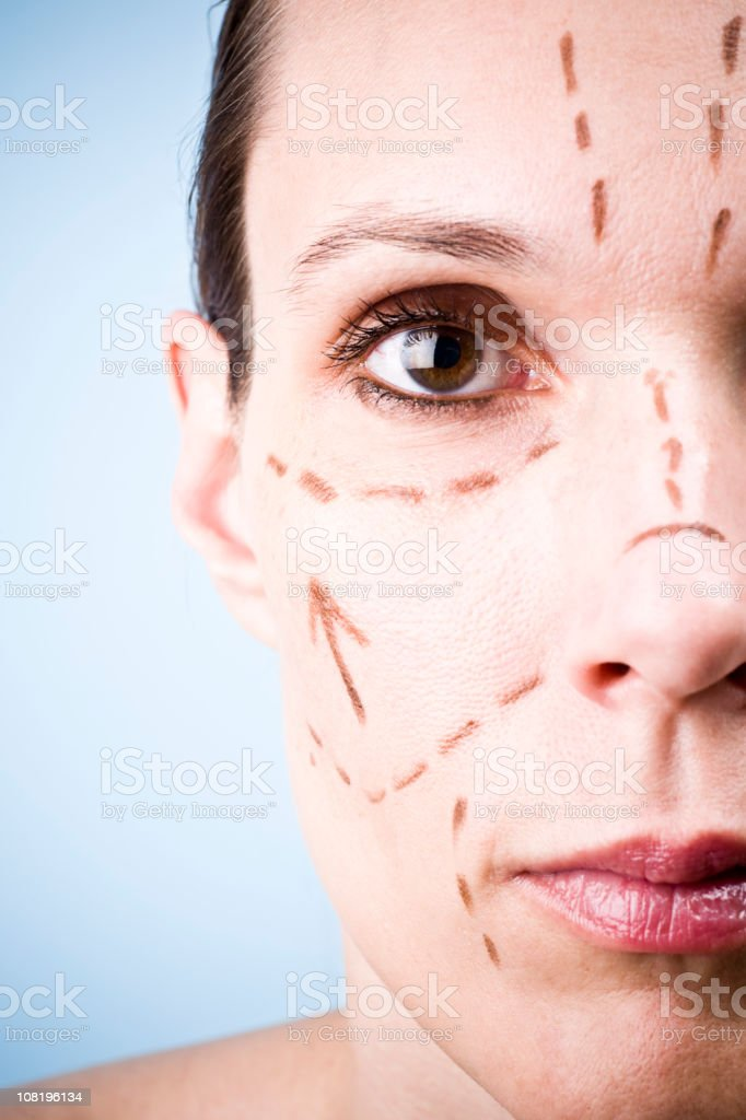 Woman's Face with Cosmetic Facelift Markings royalty-free stock photo