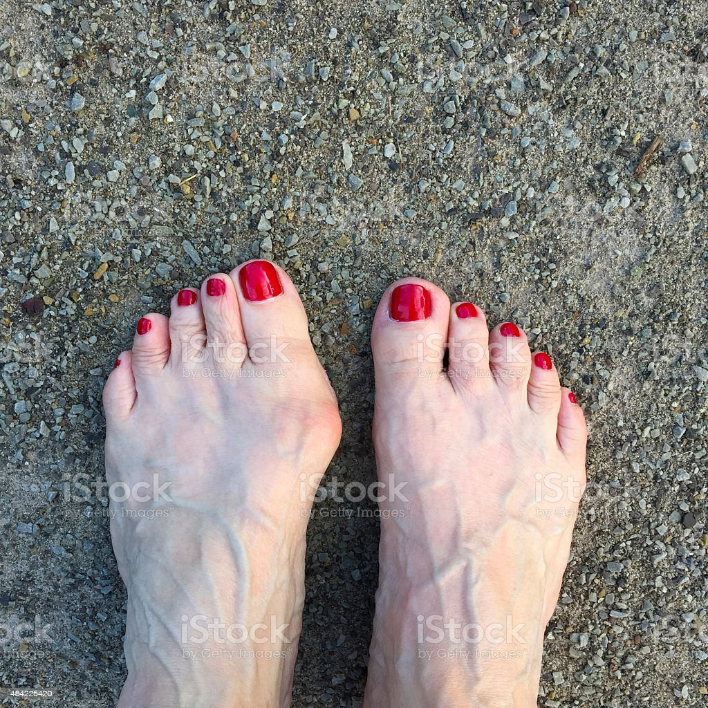 Woman's Feet and One Bunion stock photo