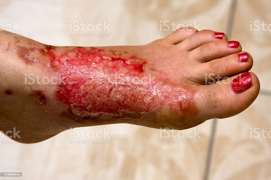 A woman's foot covered in severe burns stock photo
