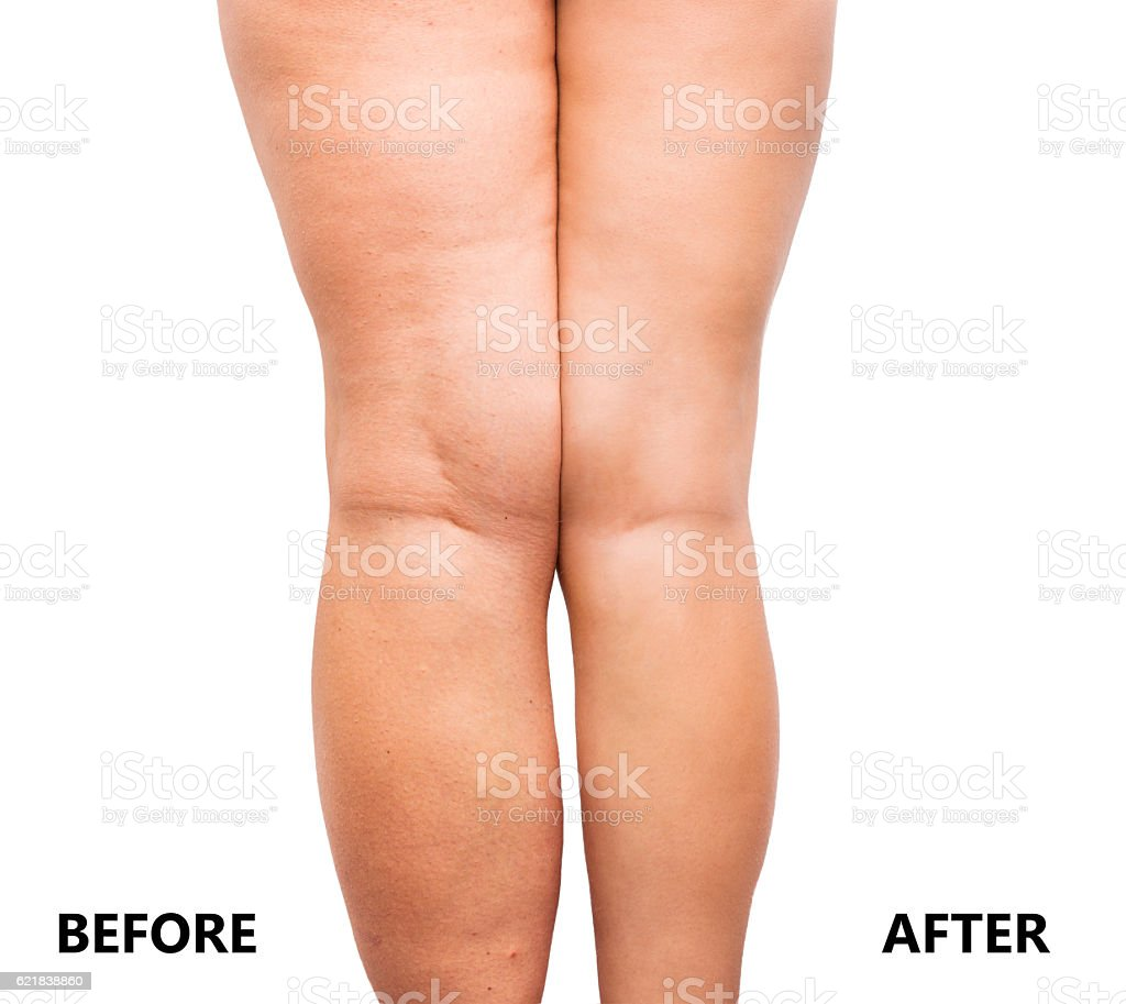 Woman's legs before and after weight loss stock photo
