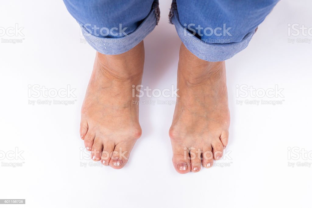 woman's legs with bunions stand on a white stock photo
