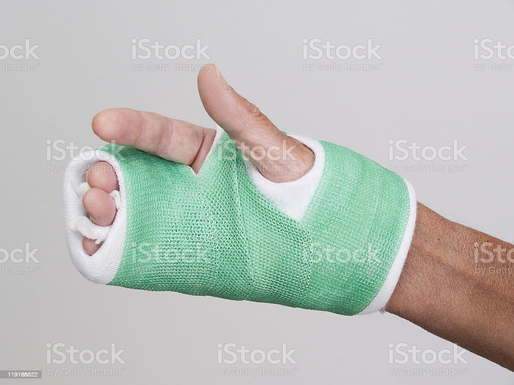 Woman's right hand wrapped in bandages and cast after surgery stock photo