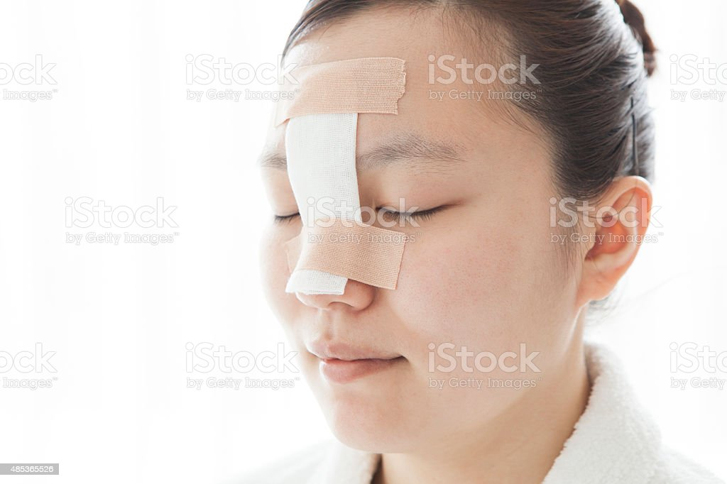 Women after cosmetic surgery stock photo