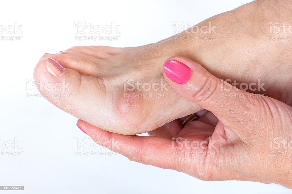 women hand holding the foot with painful bunion stock photo