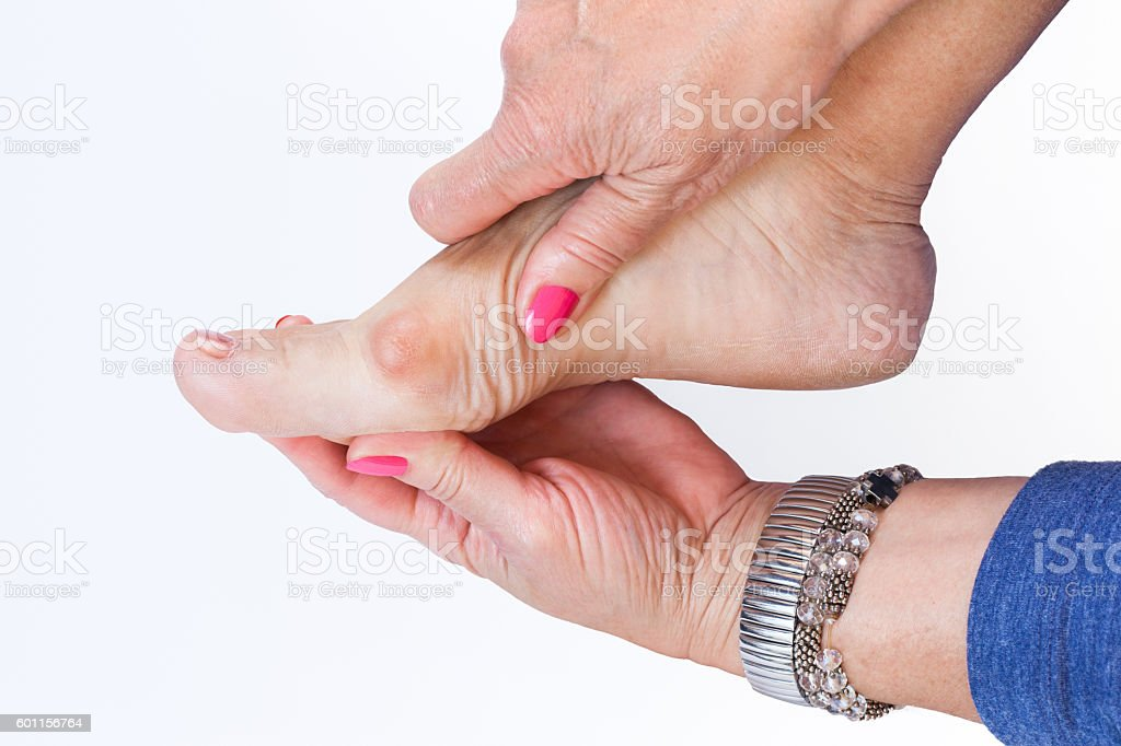 women hand holding the foot with painful bunions stock photo