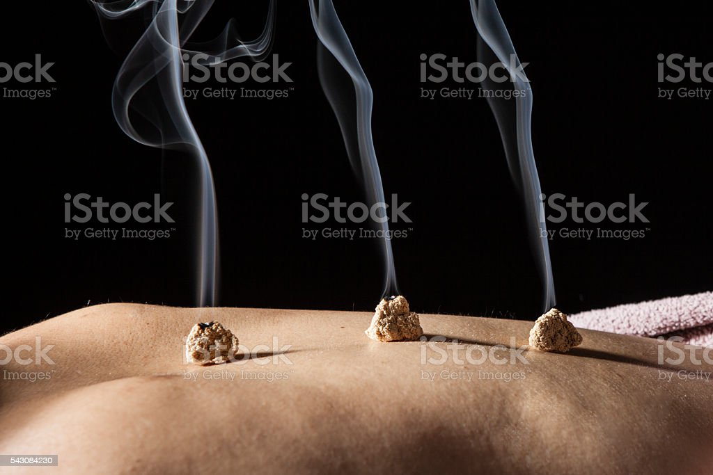 Women put the coals on his back at  spa stock photo