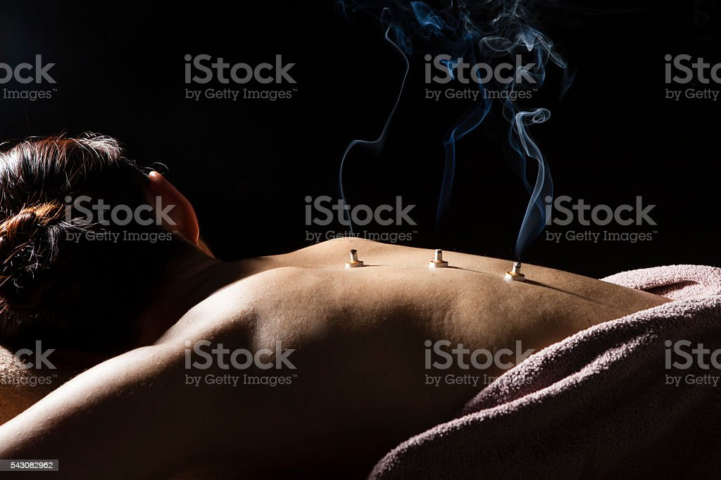Women put the coals on his back at the spa stock photo