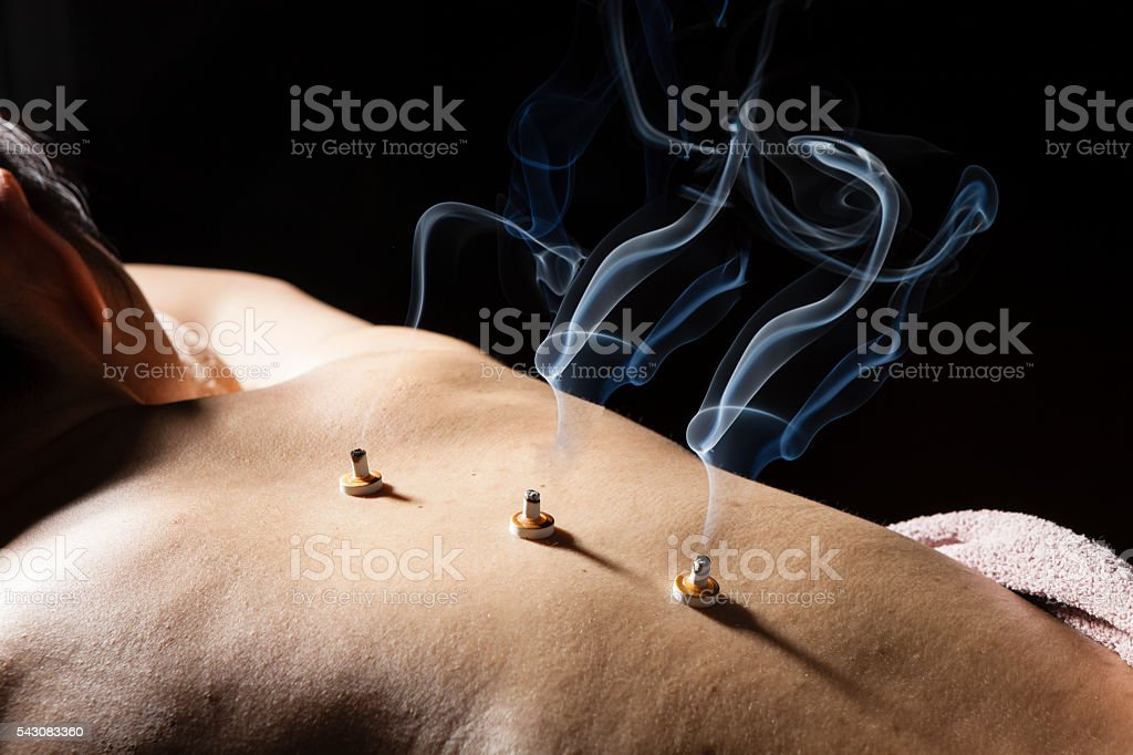 Women put the coals on his back in the clinic stock photo