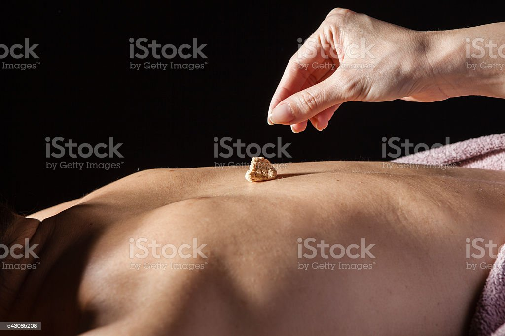 Women put the coals to the patient's back stock photo