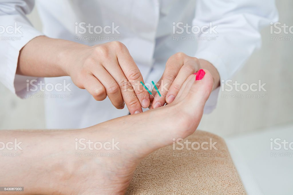 Women receiving acupuncture treatment of foot for health