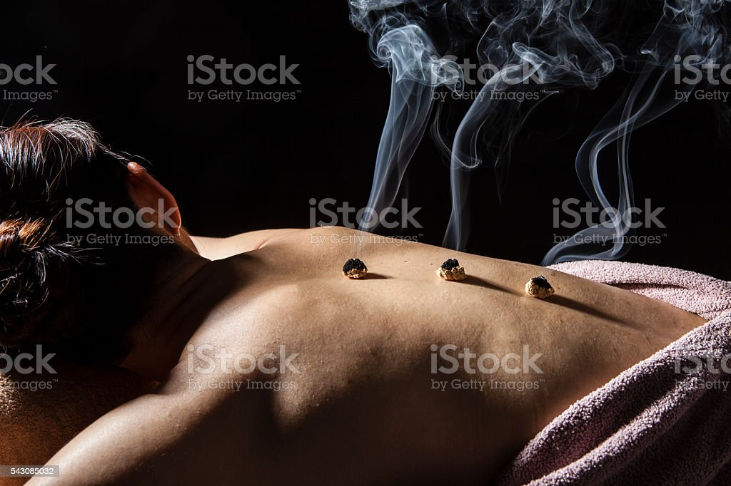 Women receiving moxibustion treatment in order to cure pain body stock photo