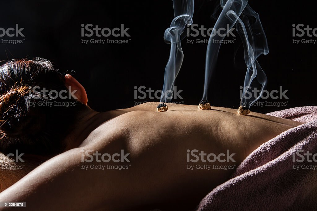 Women receiving moxibustion treatment to cure back pain stock photo