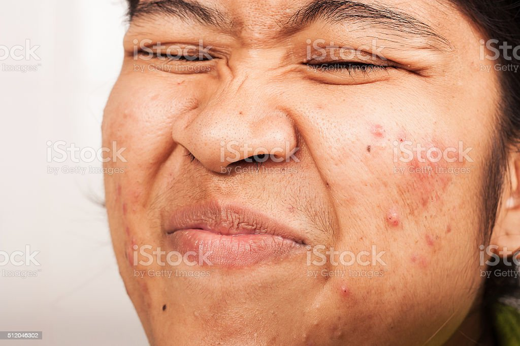 women show hair at nose and acne on face stock photo