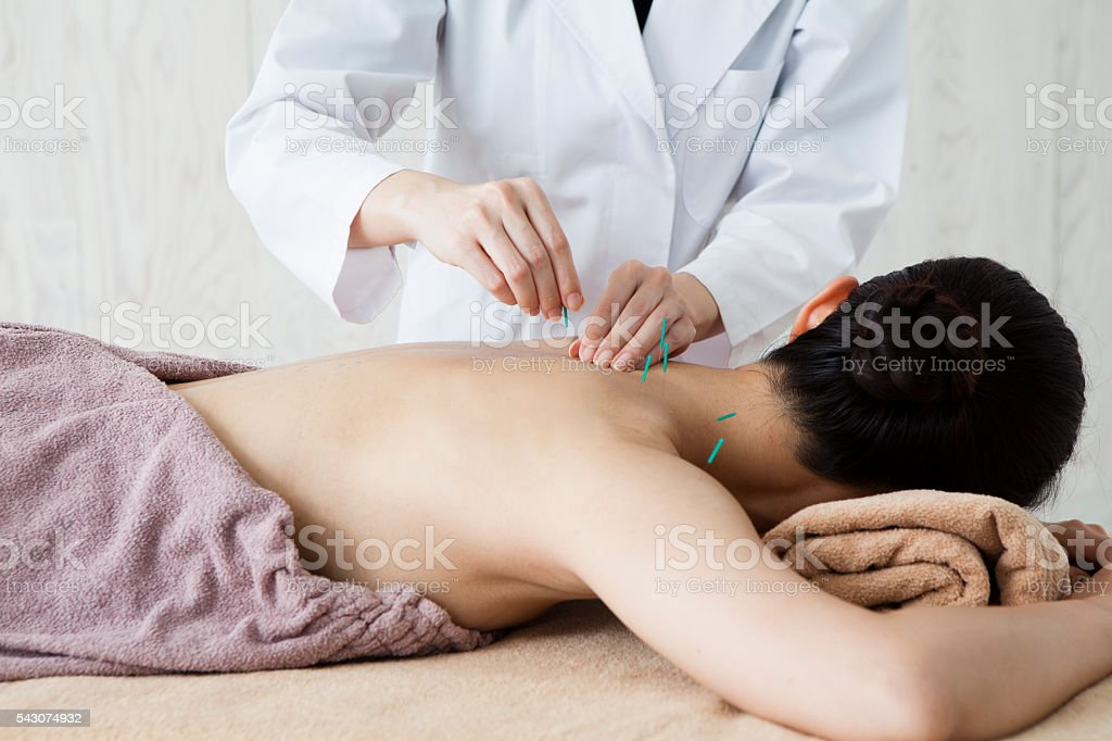 Women who are acupuncture back in the clinic stock photo