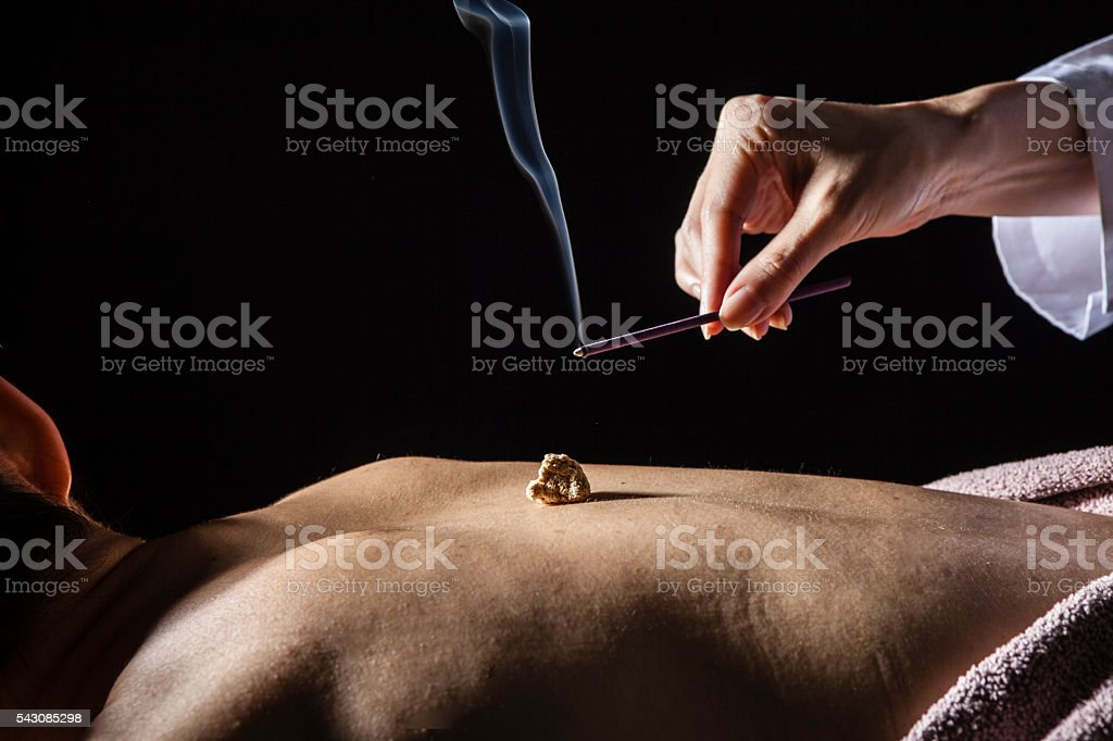Women who are moxibustion treatment of the patient's back stock photo