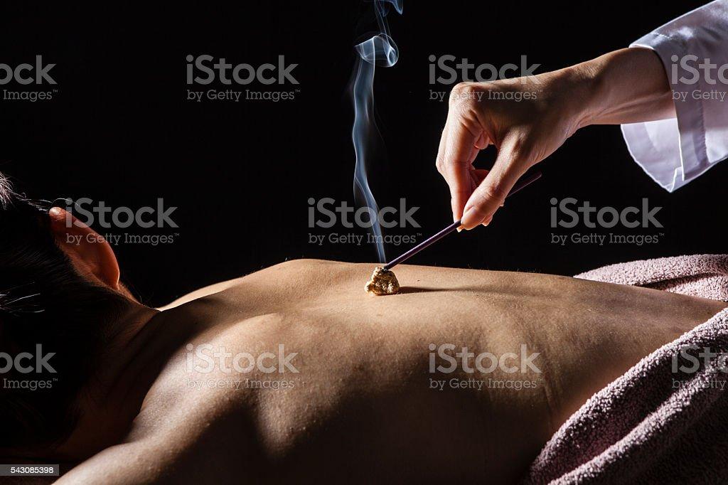 Women who are moxibustion treatment on the back stock photo