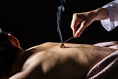 Women who are moxibustion treatment on the back