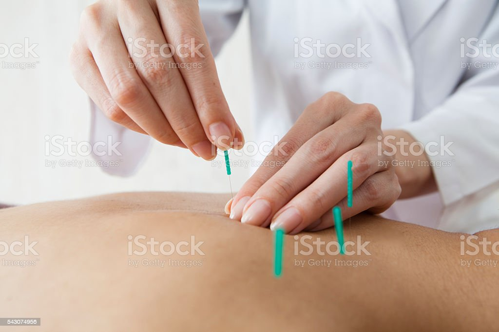 Women who are the back and acupuncture in beauty salon stock photo