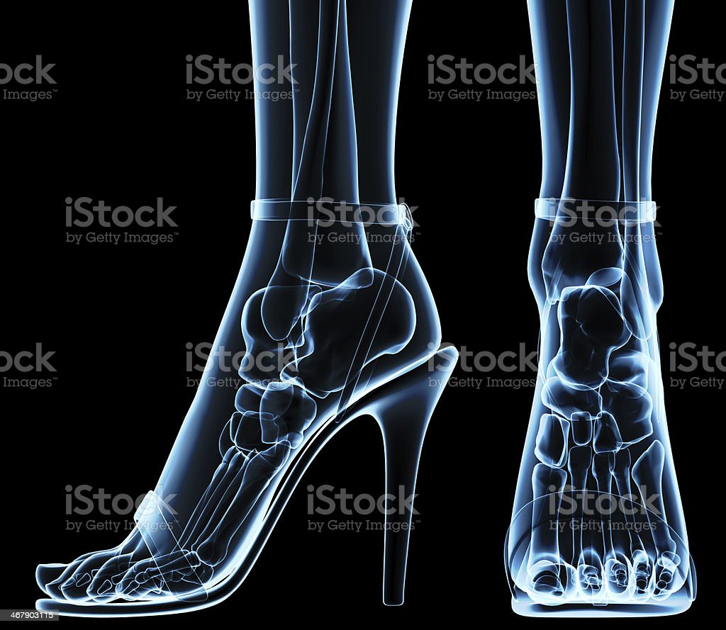 women's feet under x-ray stock photo