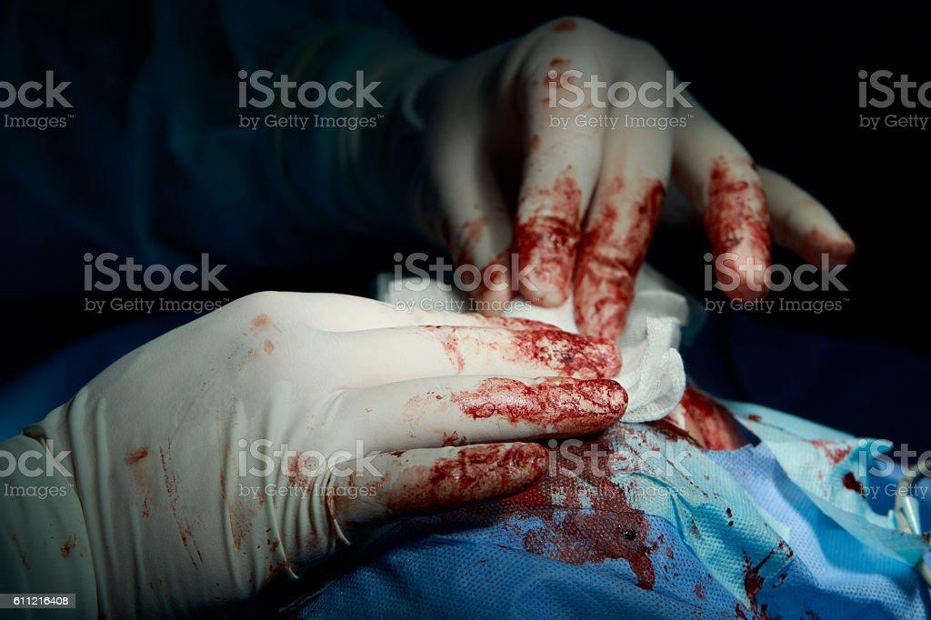 Working Surgeon's Hands Close-Up stock photo