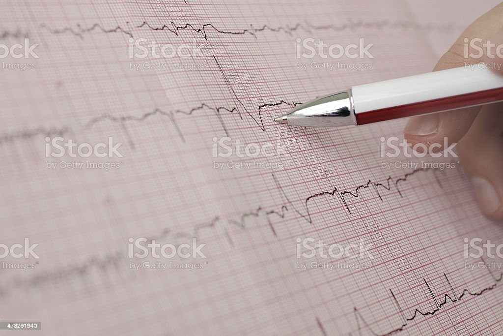 Working with the ECG stock photo