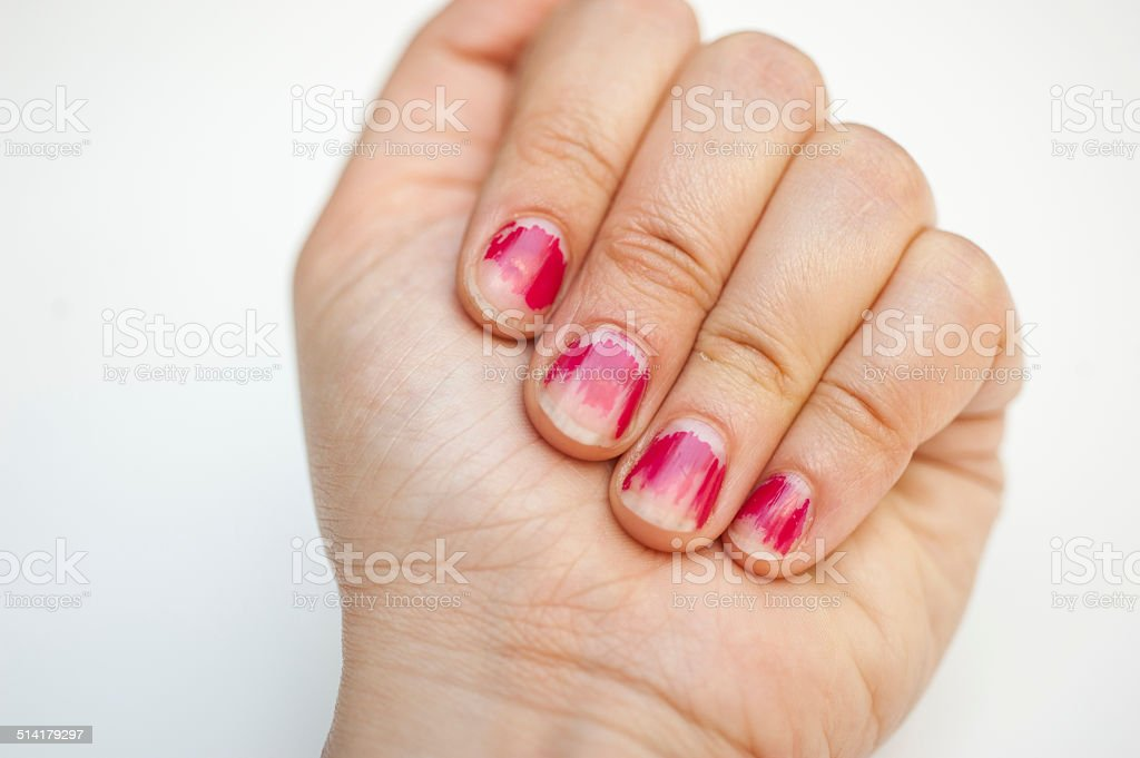 Worn Off Manicure stock photo