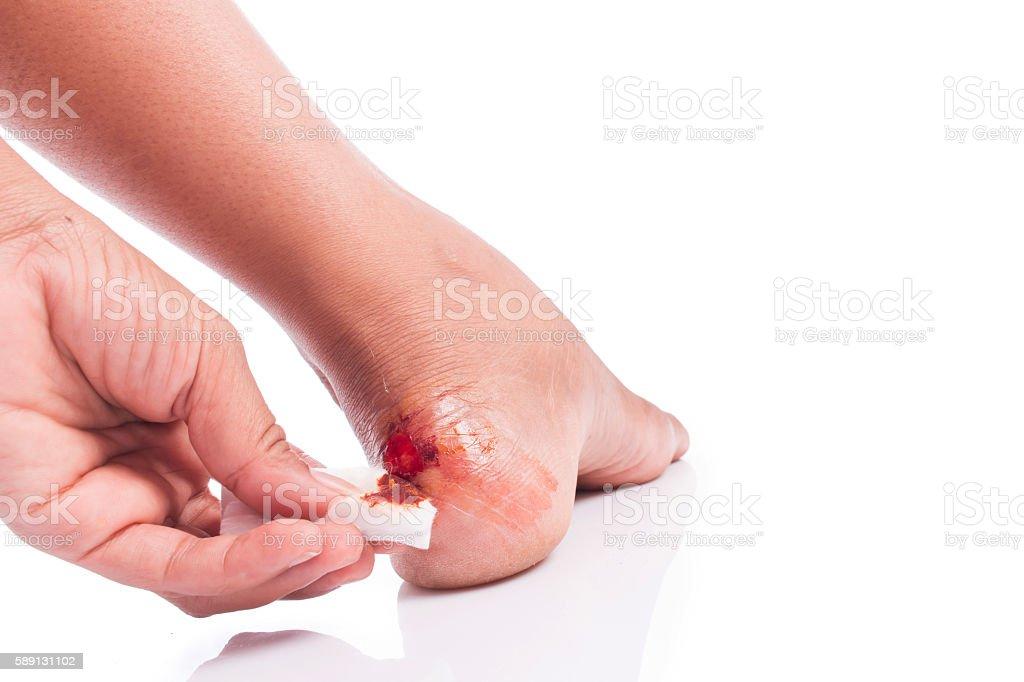wound at heel stock photo