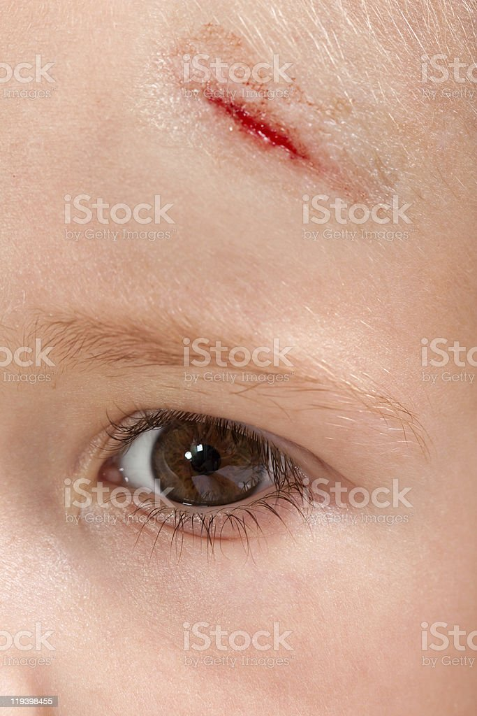 Wound child royalty-free stock photo