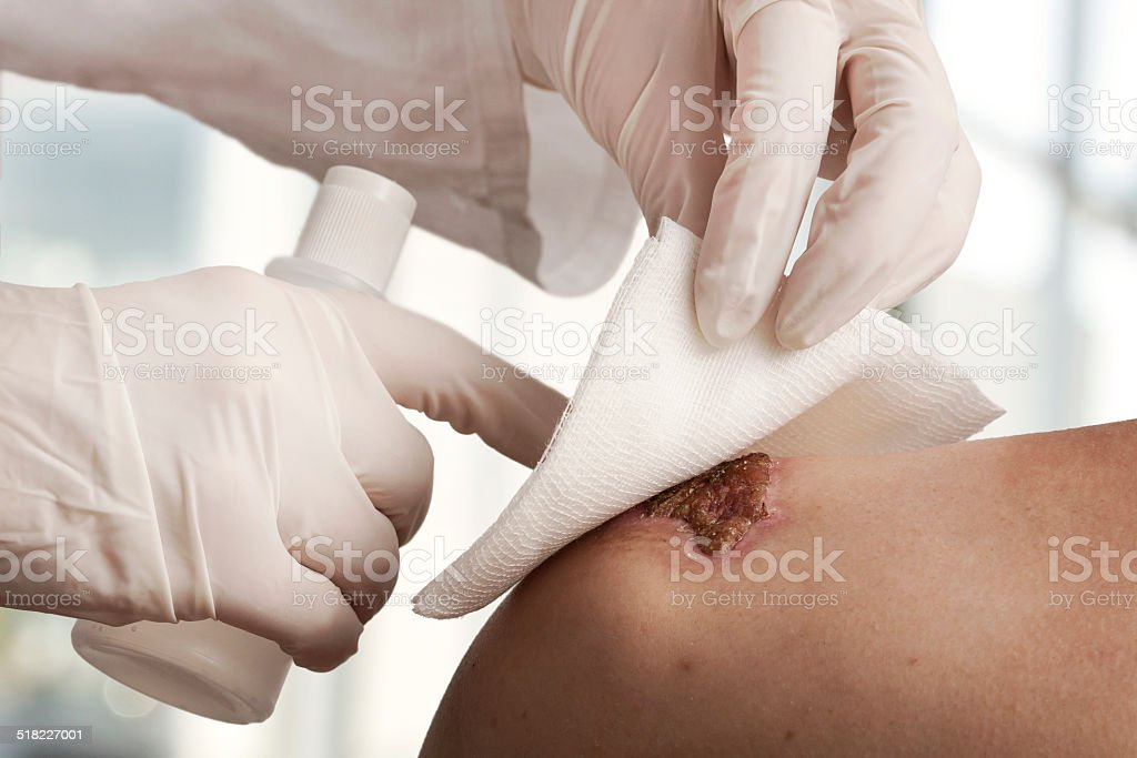 Wound dressing stock photo