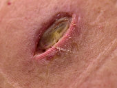 Wound on back after surgery of sebaceous gland