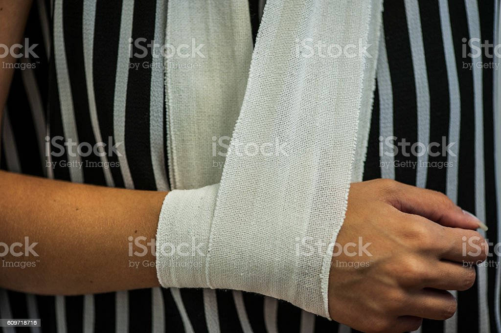 Wounded arm stock photo