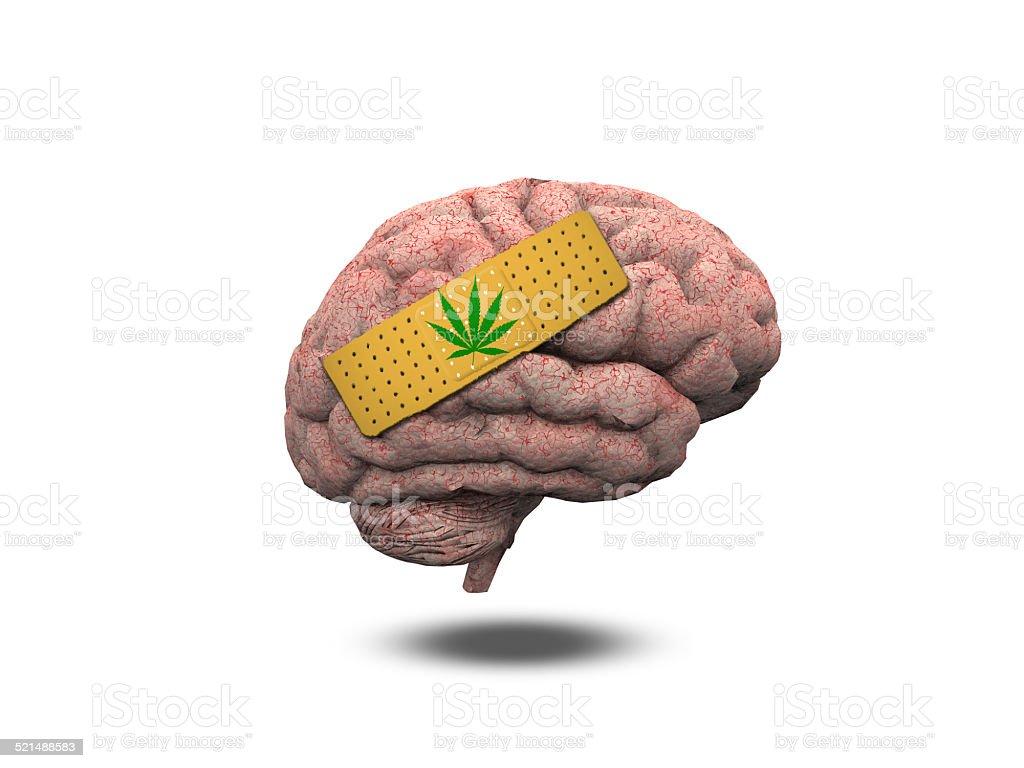 Wounded Brain with Marijuana Leaf stock photo