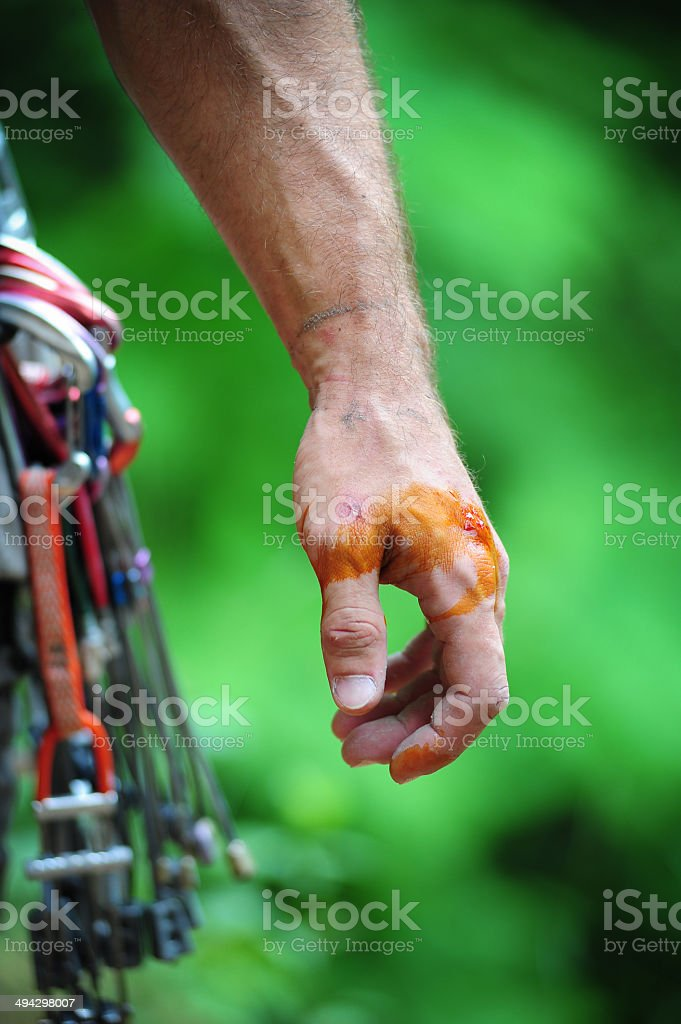 wounded climber's hand stock photo