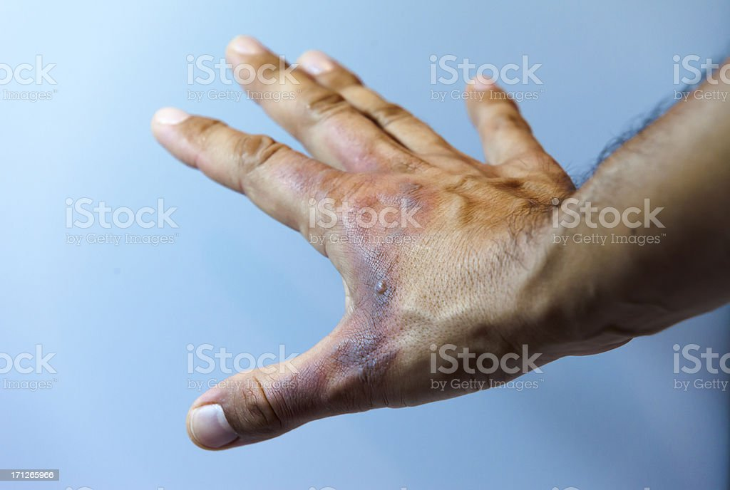 Wounded Hand (first degree burn) stock photo