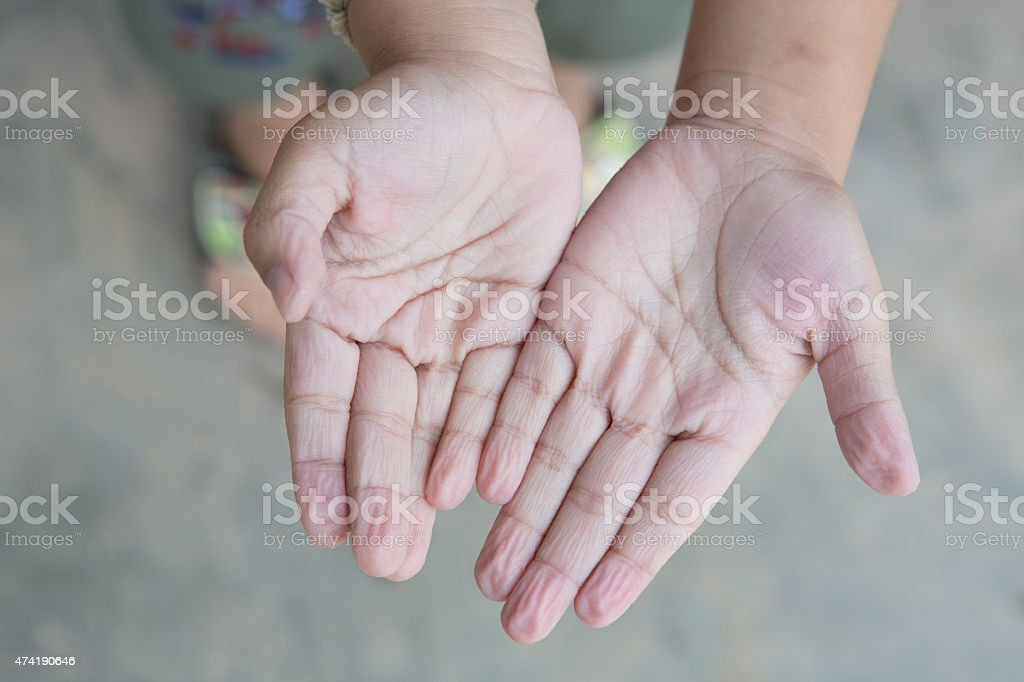 ?Wrinkled Hands stock photo