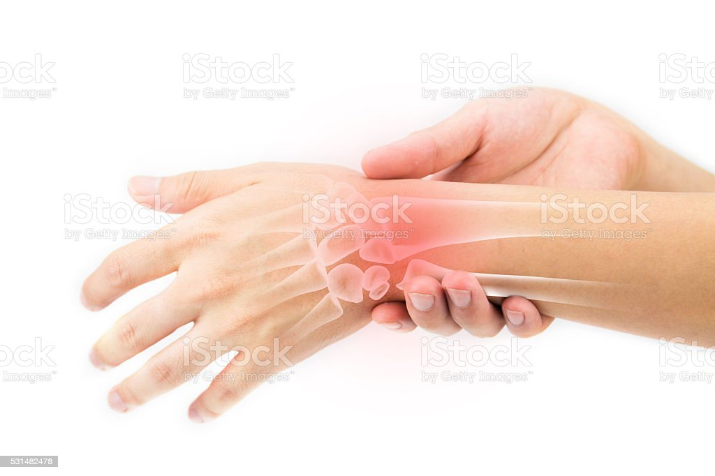 wrist bones injury stock photo