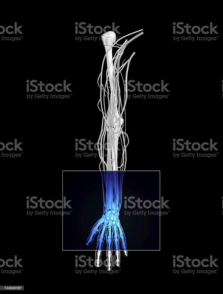 Wrist MRI royalty-free stock photo