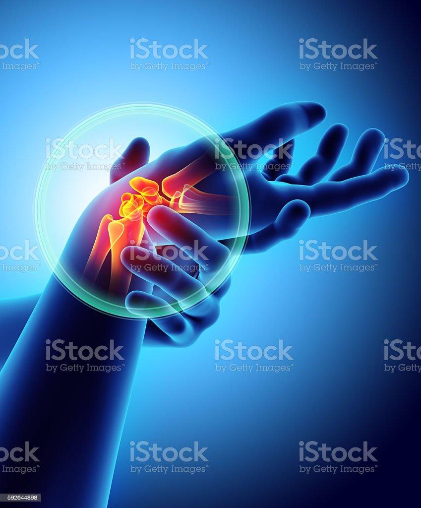 Wrist painful - skeleton x-ray. stock photo