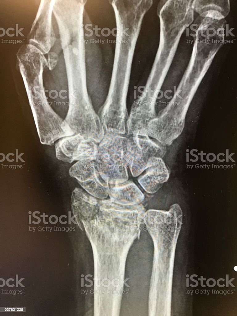 Wrist X-ray of distal radius fracture of hand stock photo